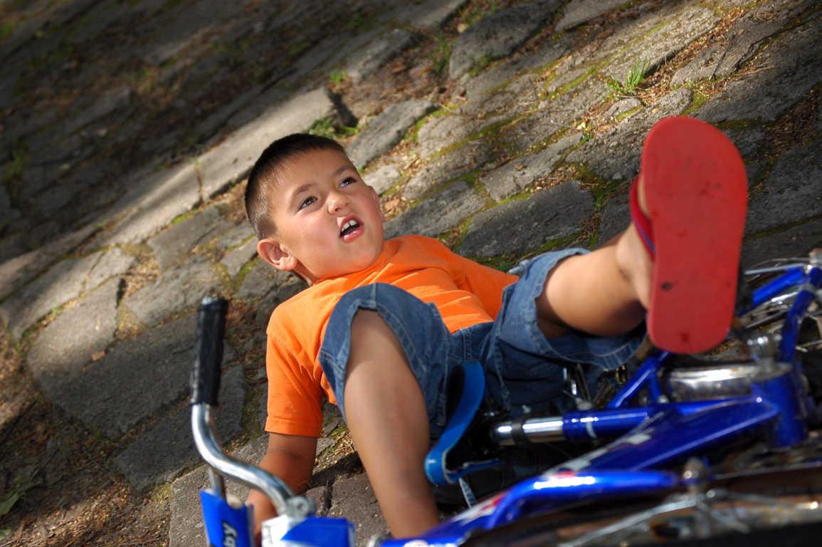 El traumatismo craneoencefálico, la principal causa de ingreso de menores en la UCI